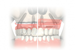 Implant Rehabilitation of the Edentulous Jaw 2019