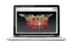 Cours de planification DTX Studio Implant - Initiation