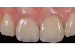 Predictable long-term implant & soft tissue aesthetics.