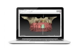 Get into reality - digital workflow & live surgery!