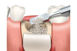 Advanced bone grafting