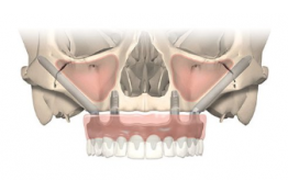 SAPO IMPLANT : International Course Zygoma