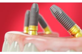Optimal Treatment Solutions for the Fully Edentulous Patient