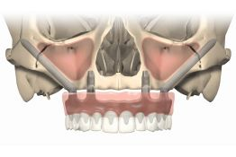 Full Arch Implant Prosthetics - including atrophic jaws and Zygomatic implants