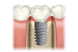 Exploring the basics of surgical and restorative implantology