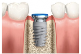 Implant Dentistry: Maxillary Sinus Augmentation