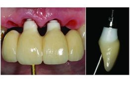 Advanced single implants and introduction to short-span bridges
