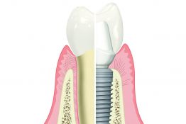 Introduction to implant surgery and prosthodontics - single tooth replacement