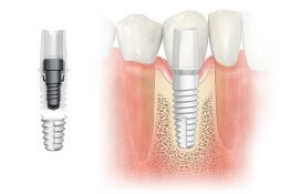 Understanding and incorporating zirconia implants in your practice With hands-on