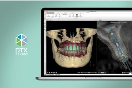 Guided workflow, software, and surgery training