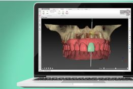 Immediate Implant and Provisionalization in the Esthetic Zone: (Broadcast)